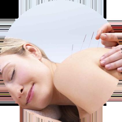 Лечение спины - иглоукалывание